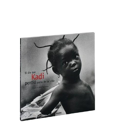 El día que Kadi perdió parte de su vida